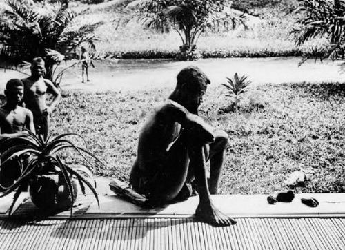 Свободное государство Конго короля Леопольда. Несчастный отец смотрит на ступню и кисть своей пятилетней дочери, съеденной плантационной полицией